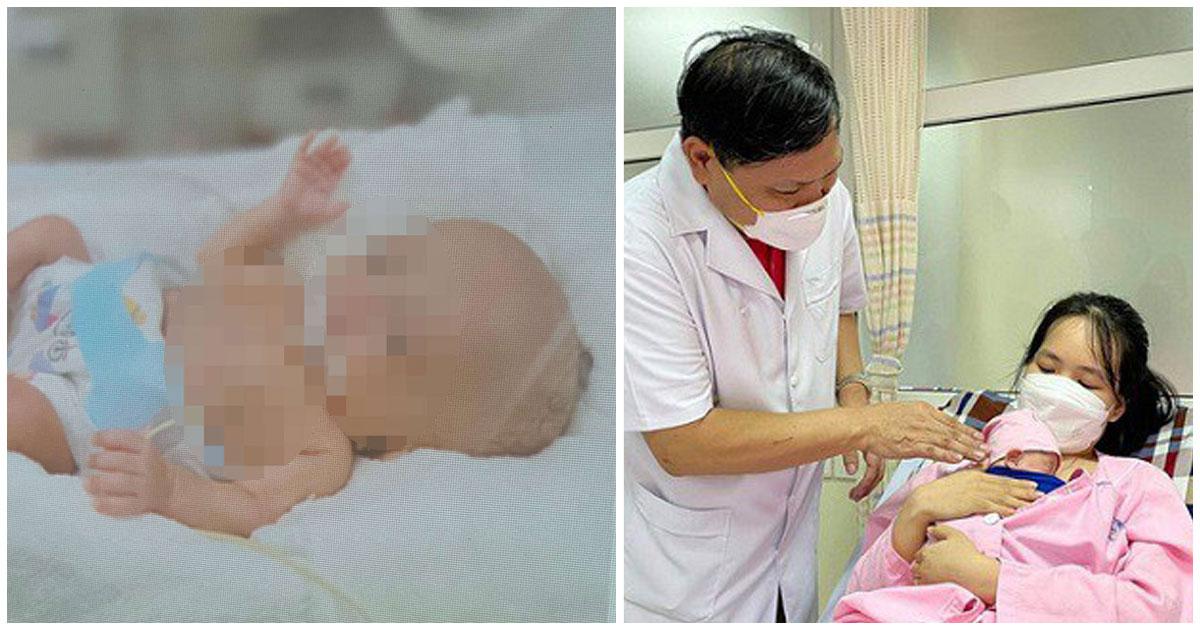 Phi thường: Bệnh viện Phụ sản Trung ương nuôi dưỡng thành công bé gái chỉ nặng 400 gram